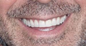 Un-sourire-eclatant-pour-l-eternel-celibataire_portrait_w674